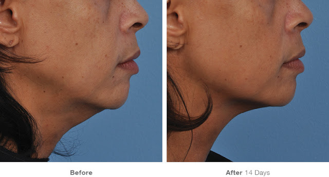 Ultherapy-before-and-after-chin