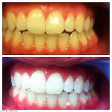 وصفة لتبييض الاسنان