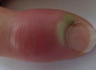 obat cantengan jempol tangan