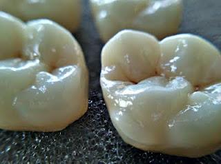 porselen diş kırılması