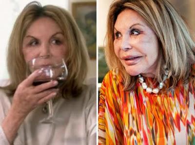 Housewives of Miami's Elsa Patton Plastic Surgery