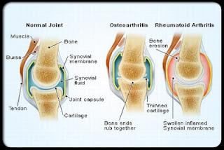 علاج الروماتيزم الروماتويد أو التهاب المفاصل الروماتيزمي