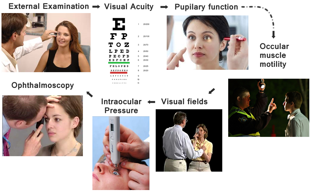 How to perform a Clinical Eye Exam - IVLine