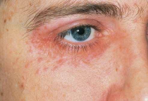 Let's Take Care : Atopic Dermatitis: How to prevent it ?