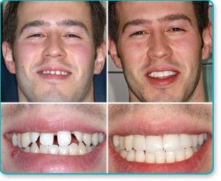les facettes dentaires pour de belles dents sans peine tbm. Black Bedroom Furniture Sets. Home Design Ideas