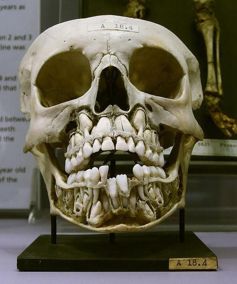 Así lucen los cráneos de los niños justo antes de perder sus dientes de leche