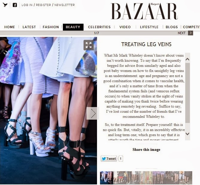 Prof Mark Whiteley - Treating Leg Veins - Harper's Bazaar