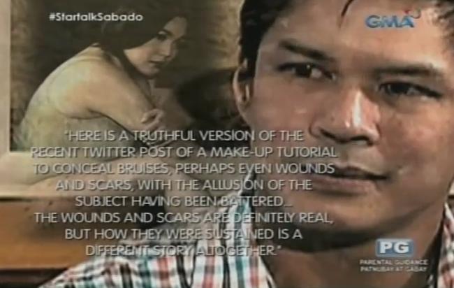 Raymart Santiago Speaks About His Issue on Claudine Barretto on Startalk