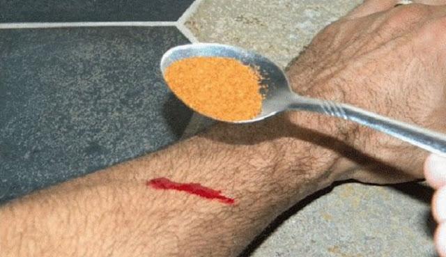 Cara Hentikan Luka Berdarah Dalam 15 Detik!