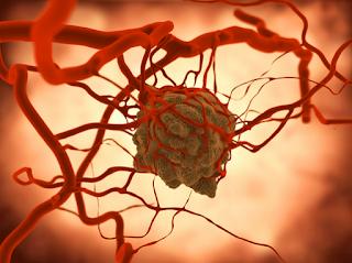 Mengenal Gejala Penyakit Kanker