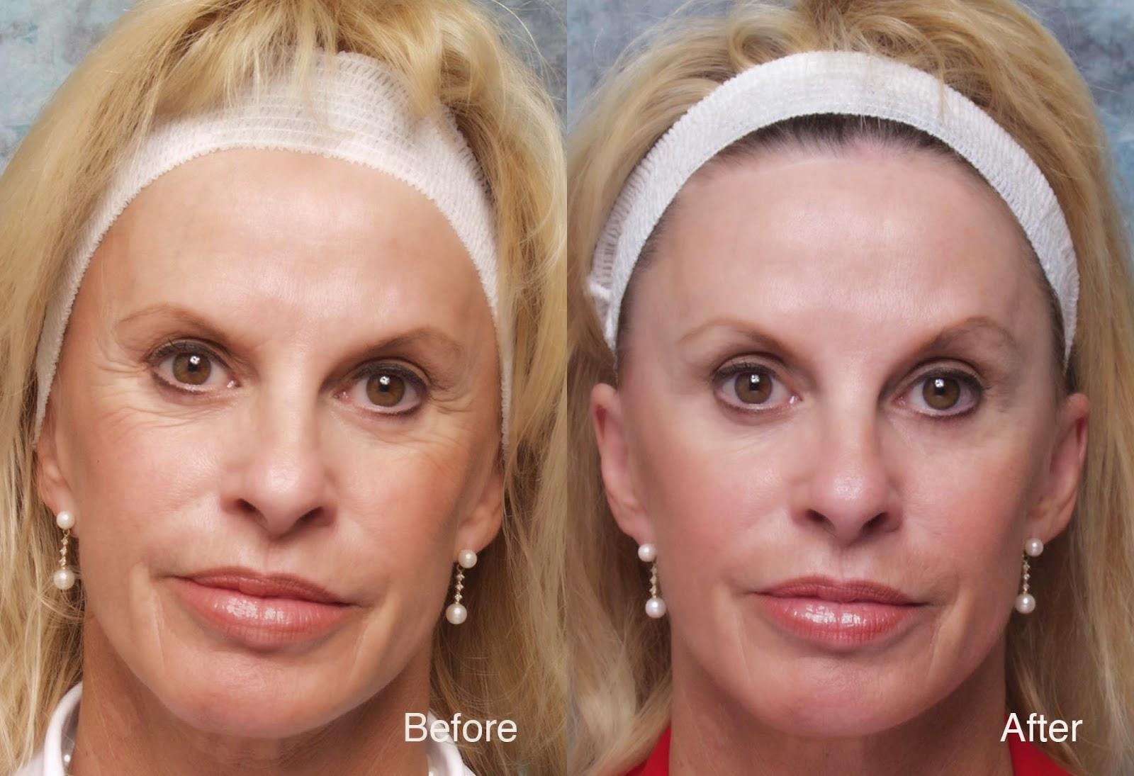 Benefits, Side Effect & Cost of Botox in London | Harley Street Skin