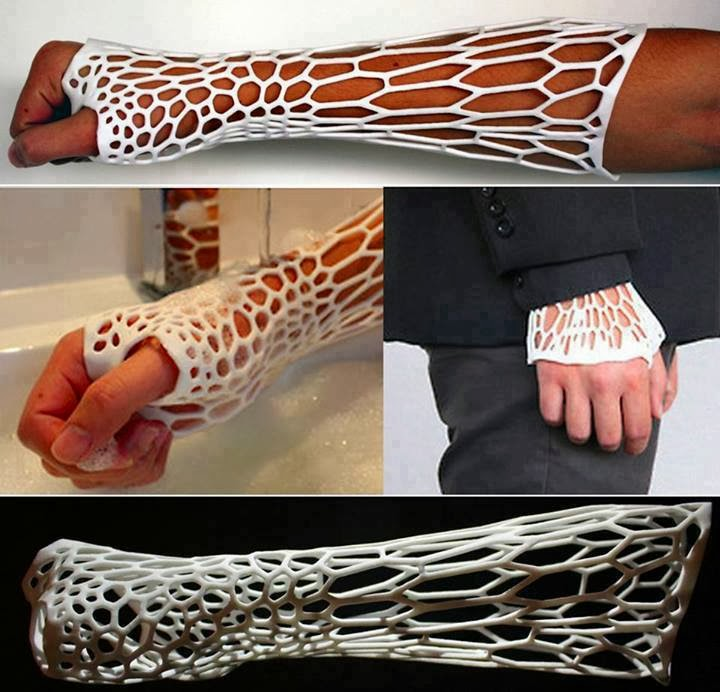 Unlike old-fashioned, bulky casts, the new prototype called the Cortex, is lightweight, ventilated, washable and thin enough to fit under a sleeve.
