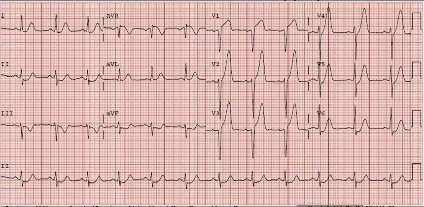 HyperKalemia with Cardiac Arrest. Peaked T waves Hyperacute (STEMI) vs. Early Repolarizaton vs. Hyperkalemia  sc 1 st  Dr. Smithu0027s ECG Blog - Blogspot & Dr. Smithu0027s ECG Blog: HyperKalemia with Cardiac Arrest. Peaked T ...