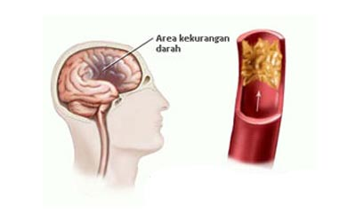 Etiologi Penyebab Penyakit Stroke Emboli