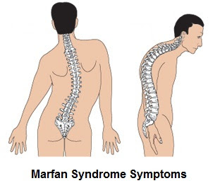 Image result for marfan syndrome