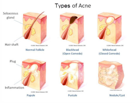 perawatan kulit wajah jerawat alami natural sabun natural komedo