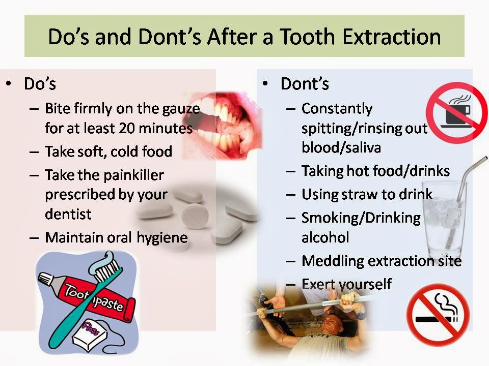 FAMILY CARE DENTAL: Do's and Dont's After Tooth Extraction