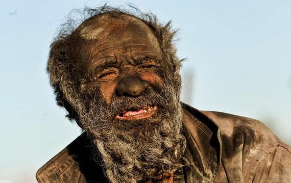Мъж който не се е къпал 60 години