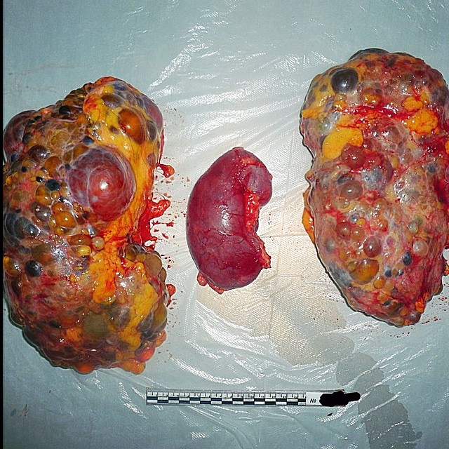 Polycystic Kidney Disease Surgery İmages...