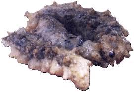 Pengobatan Tradisional Batu Empedu