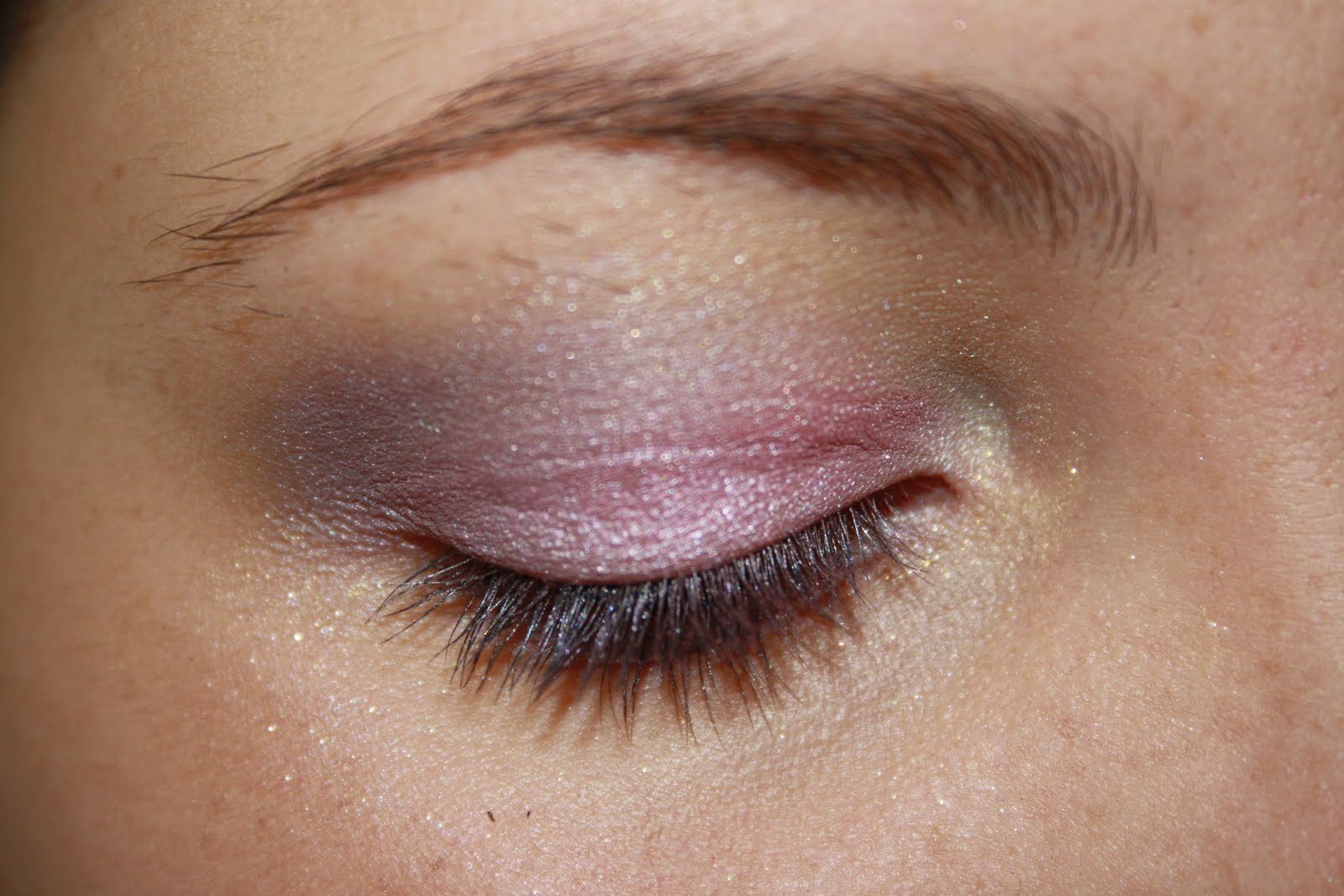 how to get rid fo ezcema on your eyelid