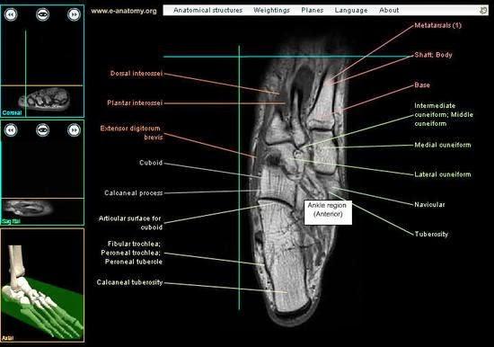 Tecnicos Radiologos: Anatomía Radiológica