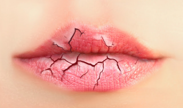 Cara Mengatasi Bibir Kering Dengan Bahan Alami