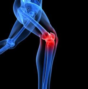 Symyptoms of Arthritis or Osteoarthritis and Treatment