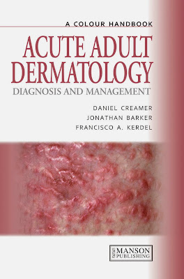 A Colour Handbook Acute Adult Dermatology - Free Ebook Download