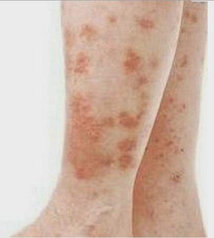 how to remove warts on my leg