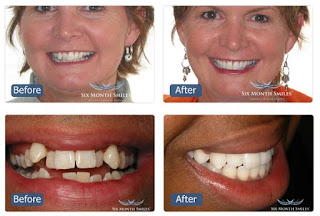 St Piran Dental Six Month Smiles before and after treatment
