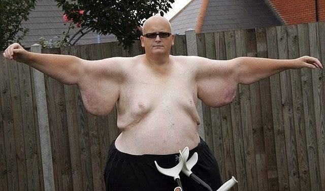 World Fattest Man Paul Mason