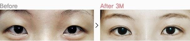 Operasi plastik kelopak mata ganda tanpa sayatan