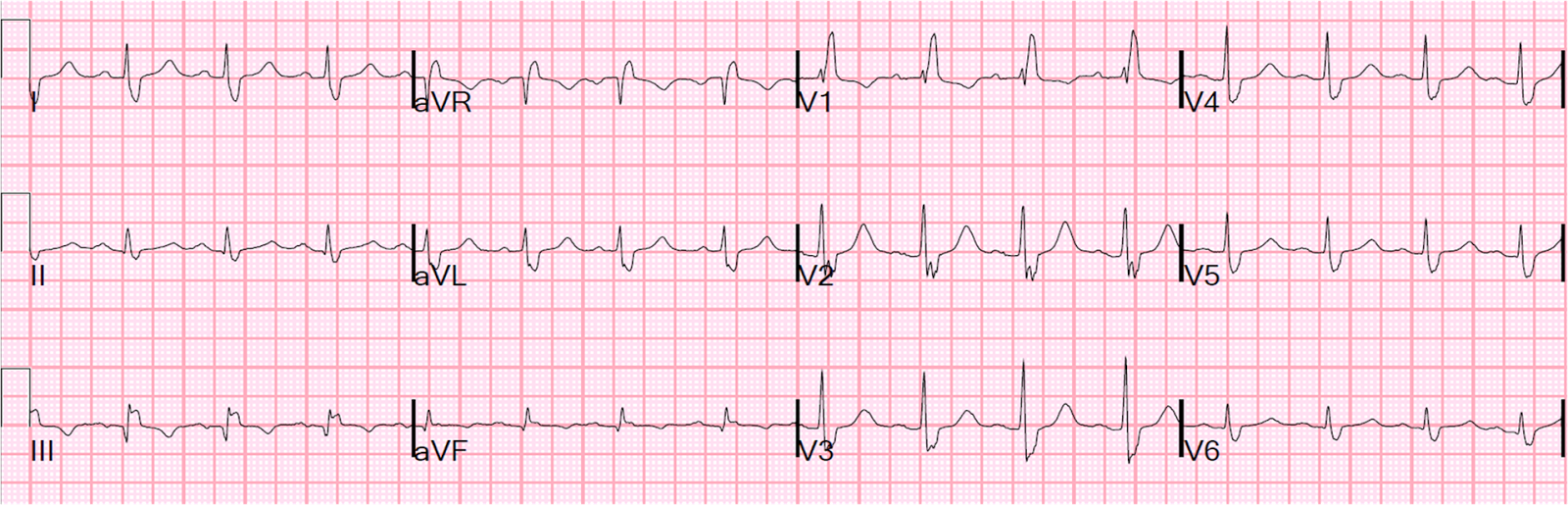 Dr. Smith's ECG Blog: PseudoSTEMI and True ST elevation in Right ...