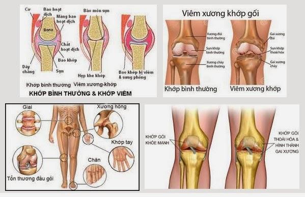 benh-dau-xuong-khop-dung-thuoc-nhu-the-nao-www.c10mt.com