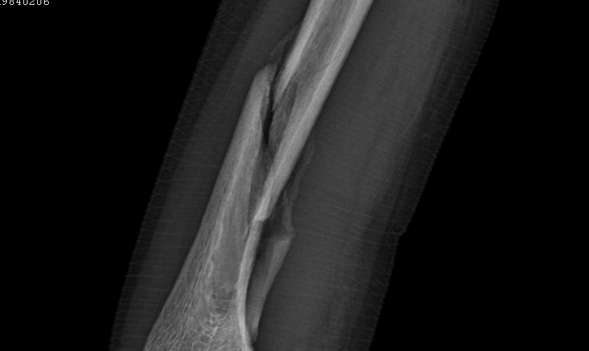 Proximal Humerus Fracture Recovery Time