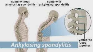 Ankylosing Spondylitis - The Cervical Spondylosis