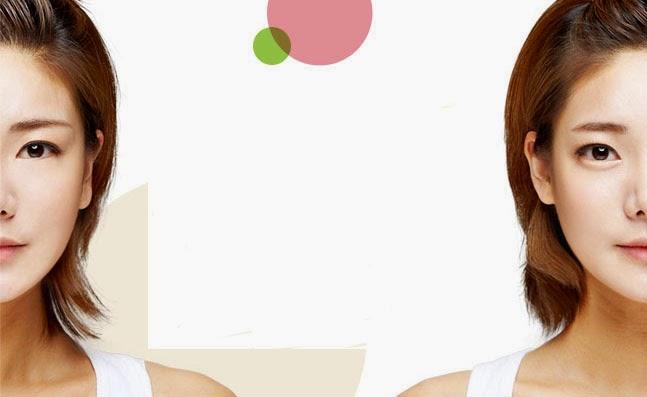 Aegyo Sal! mata imut bersama bedah plastik Wonjin