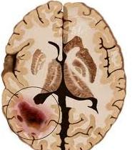 Natural Cures For Stage  Brain Cancer