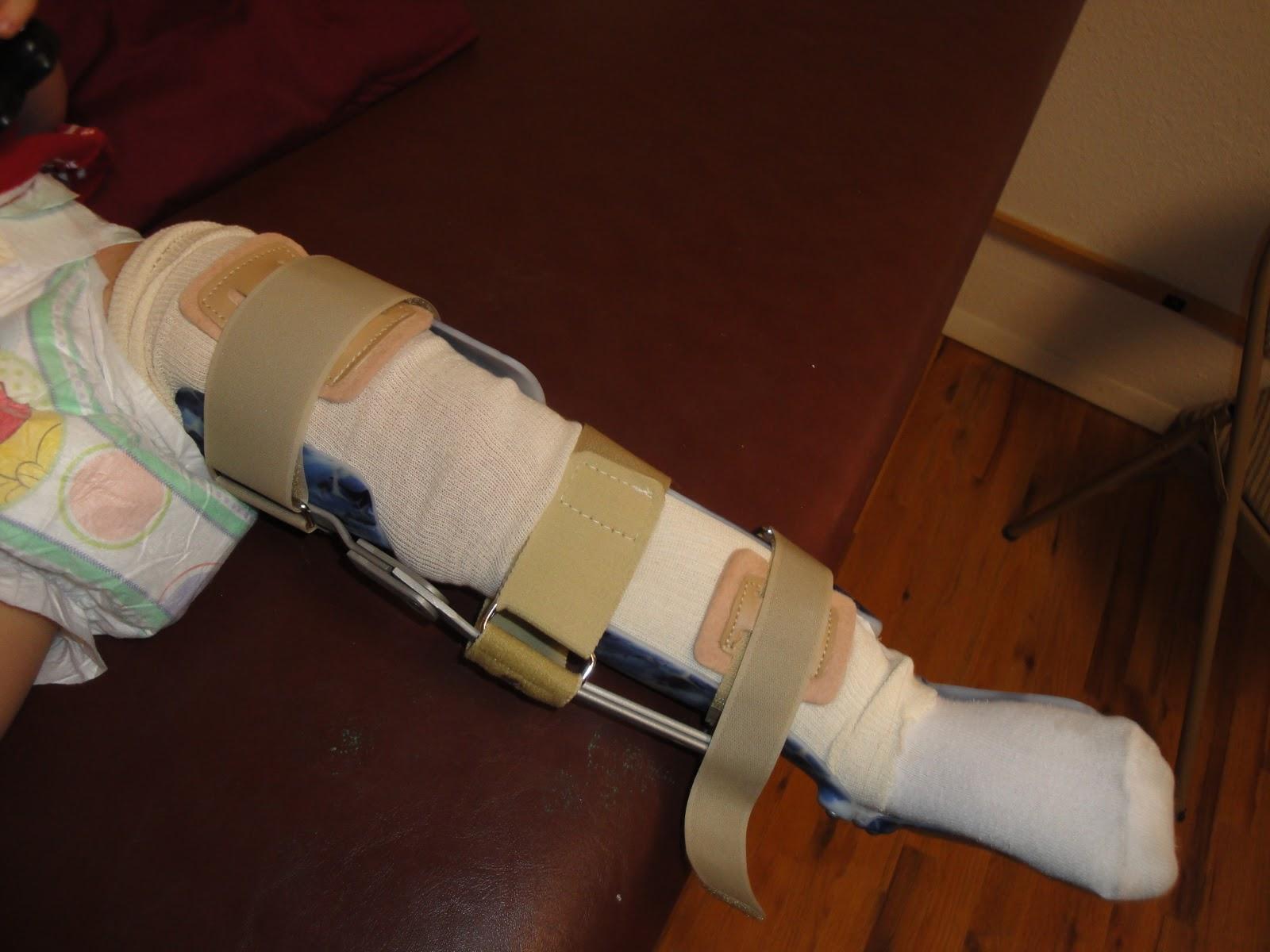 Kafo Leg Braces