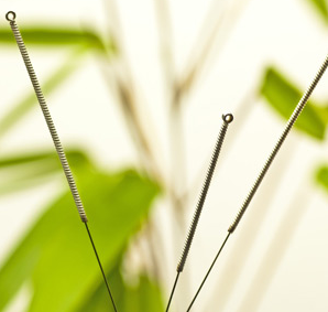 Manfaat Akupuntur pelangsing