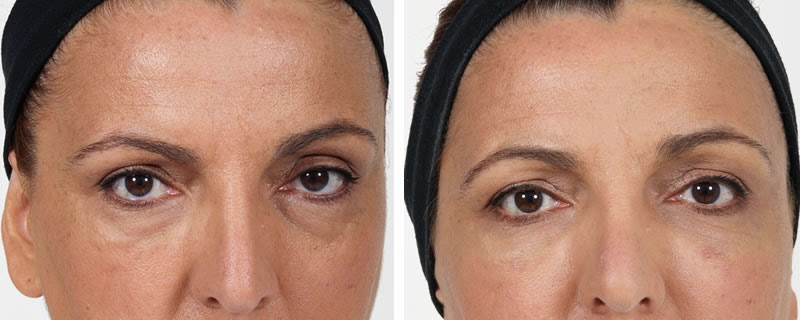 Filler for under eyes Redensity II