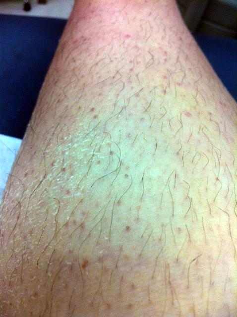 Dry Caked Dead Skin Legs