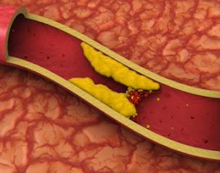 penyakit dislipidemia