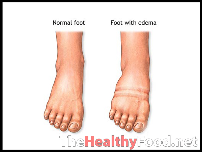... Water Retention . Hi-pok essential for long-term success. Reduction of
