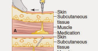 deltoid intramuscular injection and obesity essay Int j morphol, 24 (suppl 1):5-113, 2006 xxvi congreso chileno de anatomía vii congreso de anatomía del cono sur 12 al 15 de octubre de 2005.