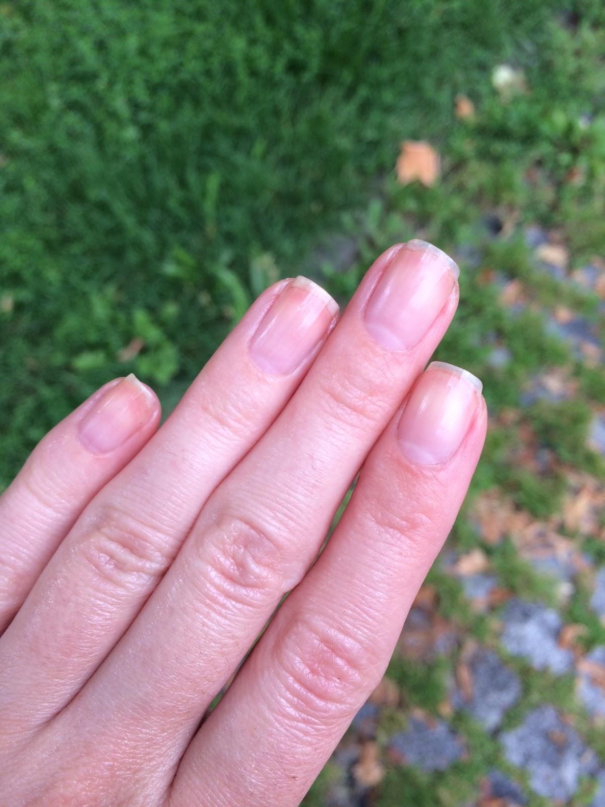 Orly Nailtrition & Nail Defense | Marzipany