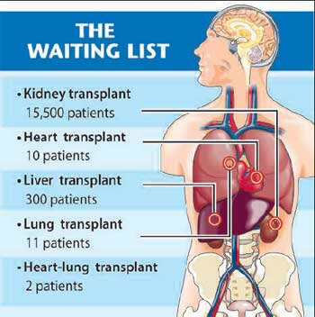"death waiting list sally satel thesis Most individuals whose organs are donated will have died from an external  trauma or  when a patient is in need of an organ they are put on a waiting list   in the essay ""death's waiting list"" the writer sally satel mentions the issue with."