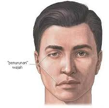 Bell's Palsy,