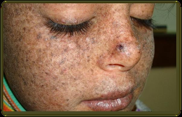 Xeroderma pigmentosum - cauze, simptome, tratament